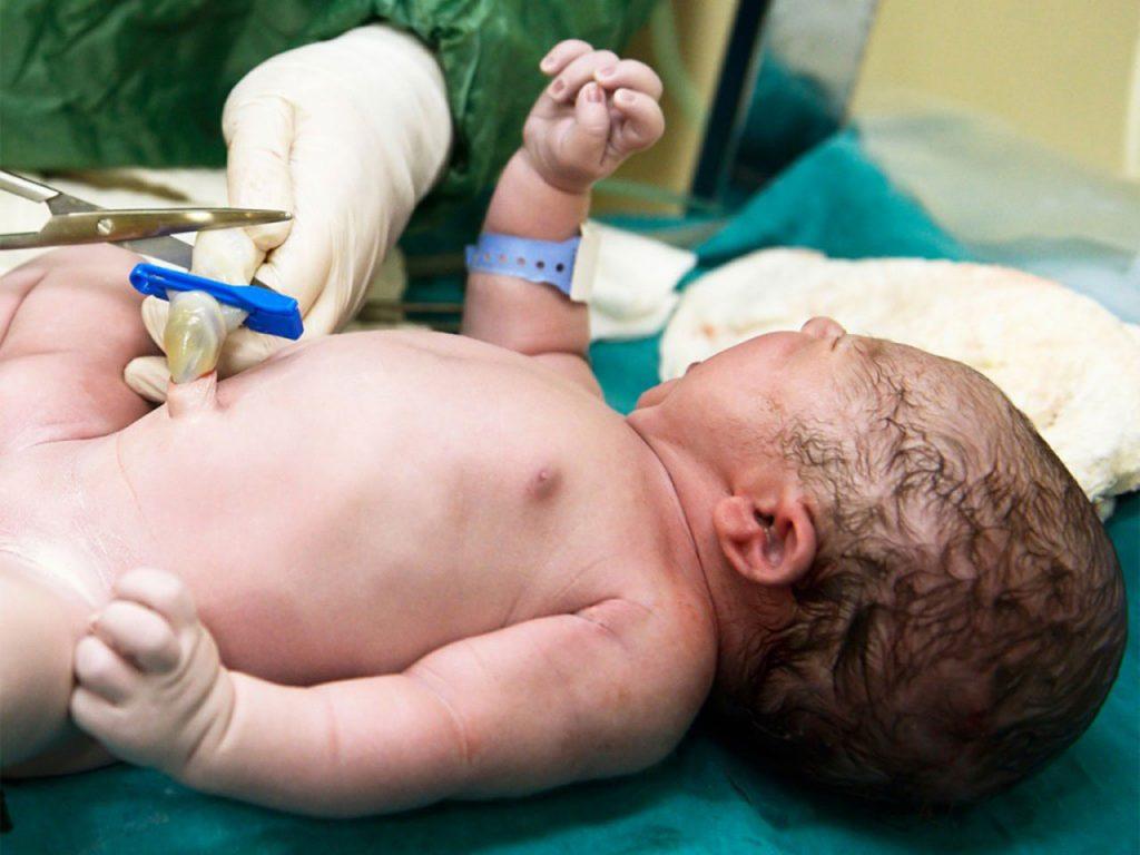 Cara Merawat Tali Pusar Bayi